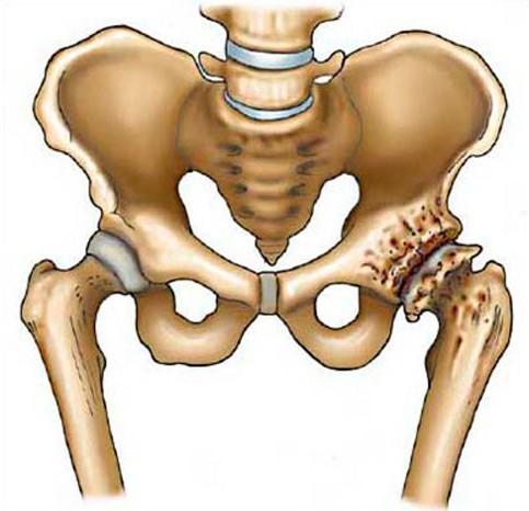 коксартроз,артроз тазобедренного сустава
