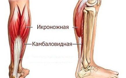 Икроножная мышца, лечение