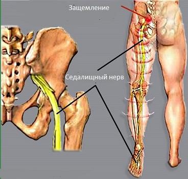 Защемление седалищного нерва | мастер массажа Рытов Денис