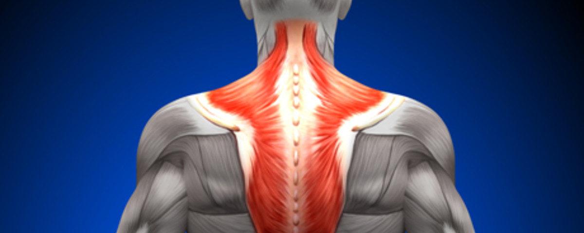 Боль в шее, возможно спазм трапециевидной мышцы